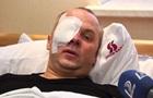 Шуфрич прокомментировал инцидент в Одессе