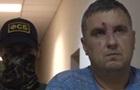 Крымский диверсант  заявил о пытках