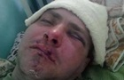 На Одесчине жестоко избили бойца  Правого сектора  за участие в АТО