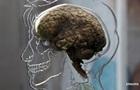 Ученые вернули сознание пациенту с  мертвым  мозгом