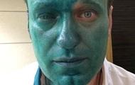 Навальный заявил, что может потерять глаз из-за ожога зеленкой и обвинил в этом инциденте Кремль