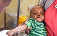 ЮНІСЕФ: у 2016 році у світі щоденно помирало 15 тисяч маленьких дітей