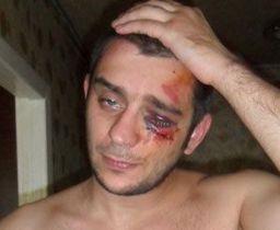 В Донецке милиционеры избили журналиста