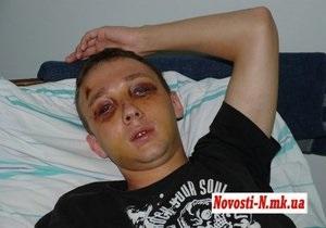 В милиции признали, что ее сотрудник причастен к жестокому избиению студента в Николаеве