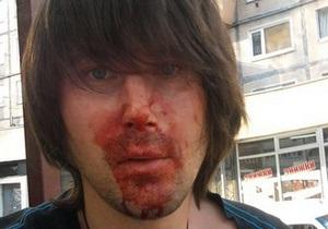В киевской маршрутке избили фотографа газеты КоммерсантЪ-Украина