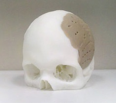 Новости медицины: Американским хирургам удалось восстановить 75% черепа человека с помощью 3D-печати