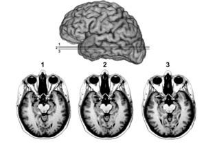 В России разработан метод, позволяющий вживую наблюдать за работой клеток мозга