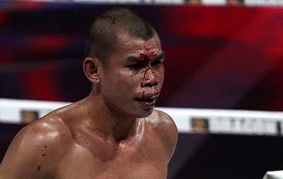 Экс-чемпион мира решил завязать с боксом после потери чемпионского пояса