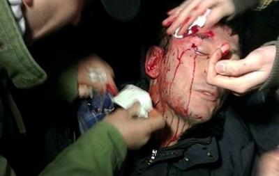 Беркут разбил Луценко дубинкой голову - пресс-секретарь