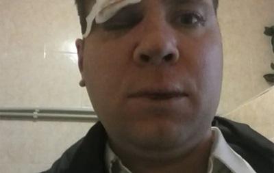 В Крыму избили американца за друга, который поддерживает Евромайдан