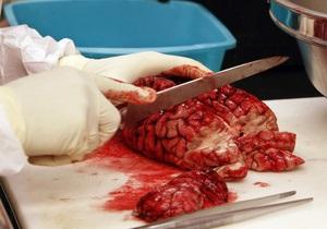 Ученые: Обезвоживание мозга мешает ориентироваться в пространстве