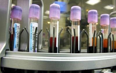 В России стремительно растет число ВИЧ-инфицированных