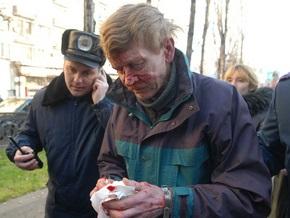 КУН: Националисты, облившие краской памятник Ленину, госпитализированы с многочисленными переломами