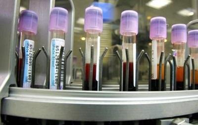 Рада утвердила госпрограмму противодействия ВИЧ-инфекции и СПИДу
