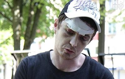 Фанат, пострадавший от удара шайбы, отсудил у организаторов ЧМ-2014 по хоккею 30 миллионов