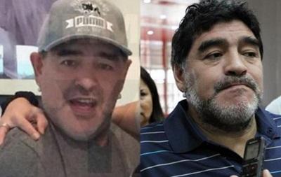 СМИ: Марадона сделал подтяжку лица