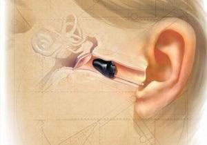 В Днепропетровской области детей с нарушениями слуха обеспечат бесплатными слуховыми аппаратами