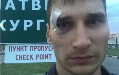 Сепаратисты избили российского журналиста и выпроводили в РФ