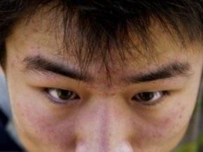 Тысячи человек изолированы в Китае из-за угрозы эпидемии легочной чумы