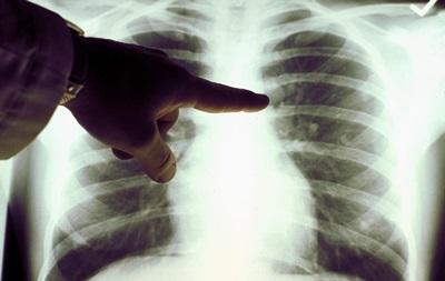 Ученые нашли в легких человека углеродные нанотрубки