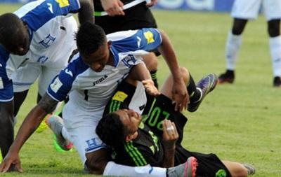 Не для слабонервных: Игрок сборной Гондураса получил страшную травму