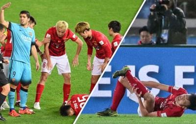 Китайский игрок получил двойной перелом ноги в матче с Барселоной
