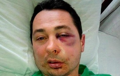 УКаховці жорстоко побили депутата