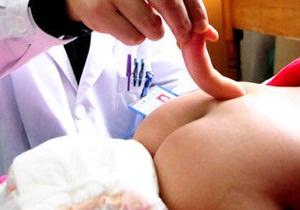 В Китае родилась девочка с хвостом