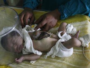 В Индии родился ребенок с сердцем снаружи