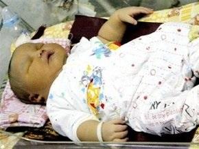 В Индонезии родился ребенок-богатырь