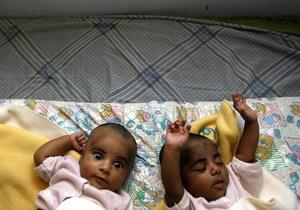 Исследование: Близнецы начинают дружить, еще не родившись