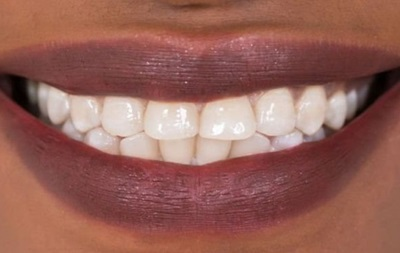 Ученые нашли способ лечить зубы без пломб