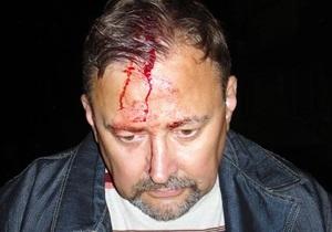 СМИ: В Красном Луче пытались убить руководителя штаба кандидата в депутаты