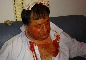 В парламентской драке бютовцу рассекли голову, его госпитализировала скорая