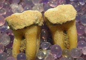 Рацион древних людей изучат по зубному камню
