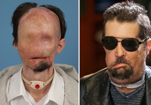 Американские хирурги провели операцию по полной пересадке лица