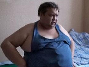 Из-за кризиса москвич в кредит сделал операцию по уменьшению желудка