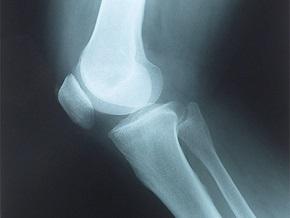 Снимок коленного сустава придет на смену отпечатку пальца