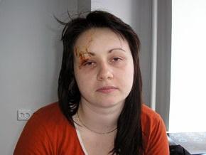 У девушки, пострадавшей в ДТП с участием Лавриновича, - отек мозга