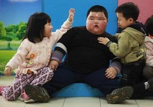 Фотогалерея: Маленький гигант. В Китае живет четырехлетний ребенок весом 62 килограмма
