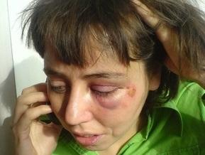 В Киеве избили художницу Жанну Кадырову