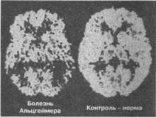 Британцы научились тормозить развитие болезни Альцгеймера