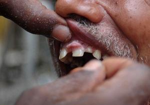 Риск смерти от инфаркта зависит от числа зубов - ученые