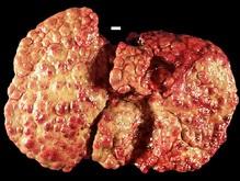 Японцы создали лекарство от цирроза печени