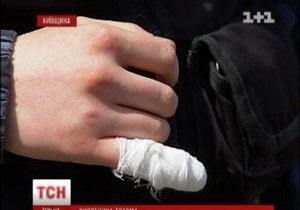 новости Киевской области - ГАИ - В Киевской области мужчина откусил кусок пальца инспектору ГАИ