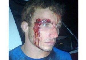 В детском лагере на Кубани избили школьников из Чечни