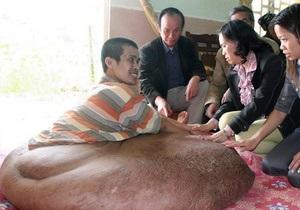 Вьетнамец живет с 80-килограммовой опухолью на ноге