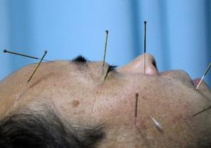 Ученые объяснили процесс снятия болей с помощью иглоукалывания