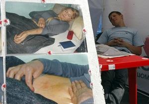 Врач Тимошенко заявляет, что для эффекта от назначенных процедур нужно время