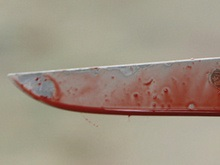 Замначальника крымской милиции получил ножевое ранение